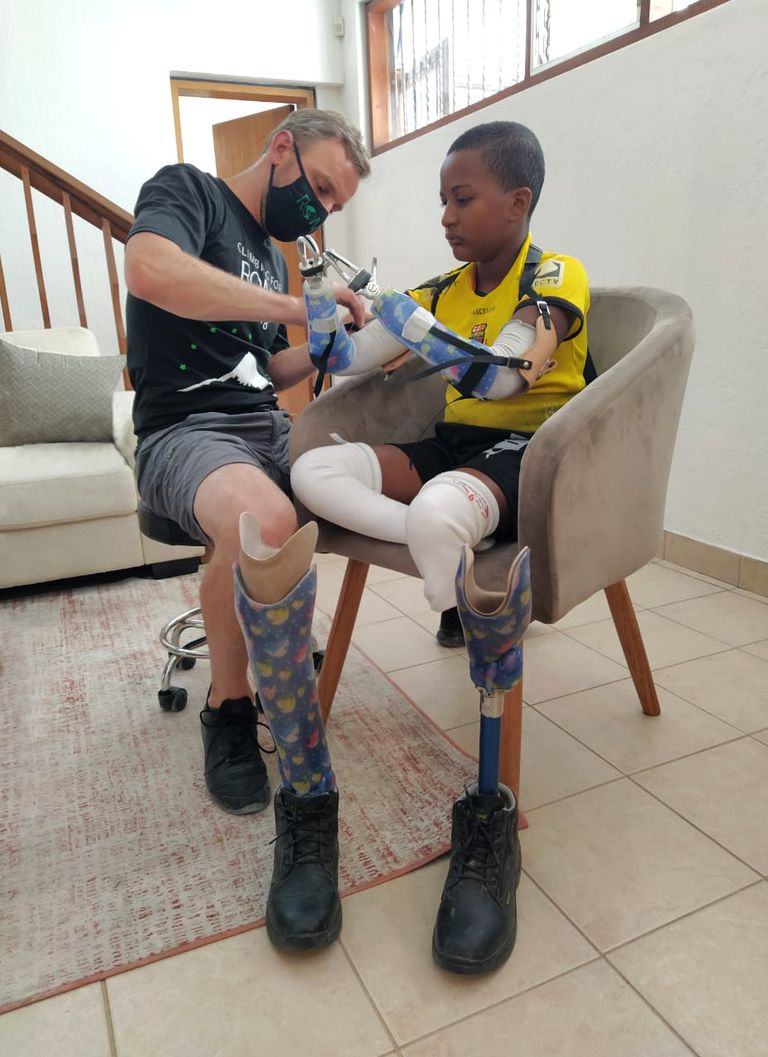 Curbell donates plastic sheet for prosthetics project in Ecuador